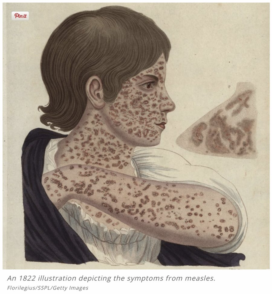 1822 illustration of measles, outlander contagion