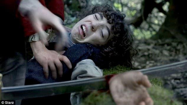 Fergus Claudel Fraser losing his hand